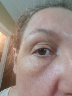 bags under my eyes but even after ONE night with the ECG Caffeine serum the swelling and bags are drastically reduced. I also forgot to mention I am a CPAP wearer.