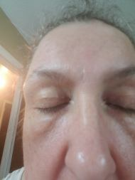 I discovered in the last year that my eyelids had become hooded. Not terribly much but enough!