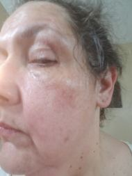 Acne Scarring, hyper pigmentation, freckles and deep upper lip wrinkles from an disgusting smoking habit
